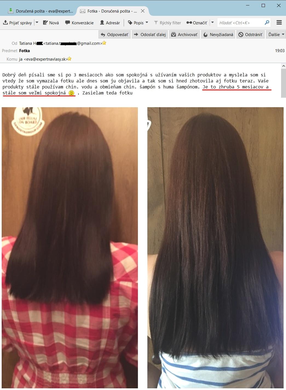 vlasovy test 5 mesiacov PO